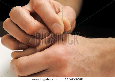 Acupuncture.Chinese medicine treatmen. The therapist introduces needle in the right place on the hand. poster