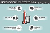 Complication of Hypertension( Heart attack : myocardial infarction , cardiomyopathy )( Brain : stroke , dementia )( visual loss )( Headache )( Renal failure )( Artherosclerosis , aneurysm ) end organ damage poster