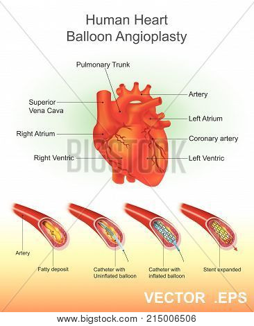 Angioplasty (or Balloon angioplasty) is an endovascular procedure to widen narrowed or obstructed arteries or veins typically to treat arterial atherosclerosis