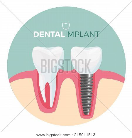 Dental implant promo poster circular image with two teeth, implanted and joined with help of screw and healthy tooth isolated on vector illustration