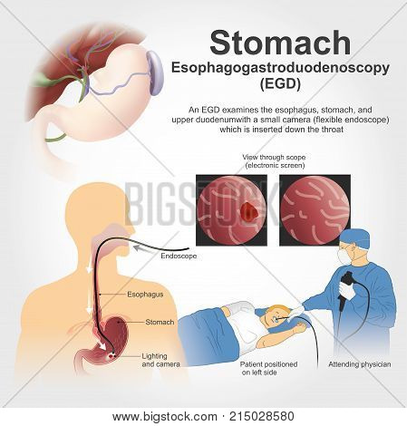 Stomach Esophagogastroduodenoscopy. Illustration vector, Anatomy body human.