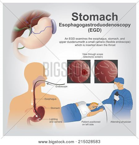 Esophagogastroduodenoscopy also called by various other names is a diagnostic endoscopic procedure that visualizes the upper part of the gastrointestinal tract up to the duodenum.