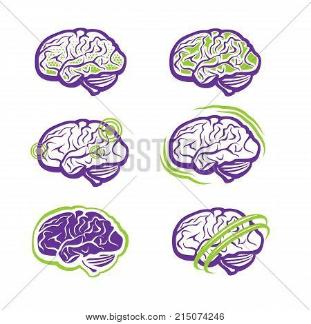 All about brain - brain diseases and treatment
