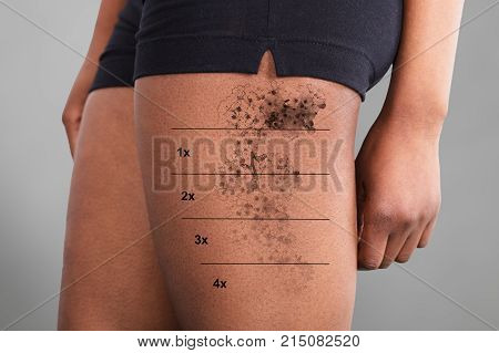 Midsection View Of A Laser Tattoo Removal On Woman's Thigh