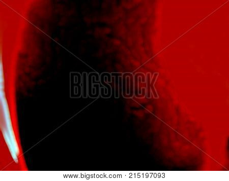 Dangerous blood clot that forms in a blood vessel under a microscope