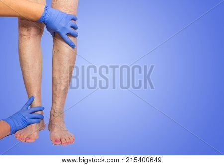 Lower limb vascular examination because suspect of venous insufficiency. The female legs on blue background