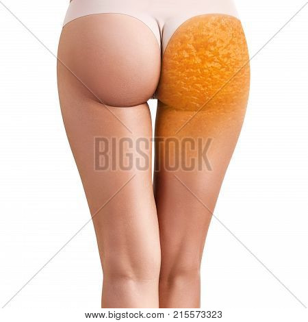 Female buttocks with orange peel texture shows abstract cellulitis problem. Isolated on white.