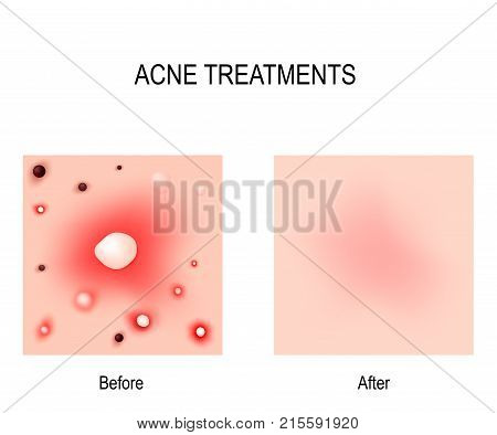 Acne Treatment. Before and after. Skin problems: blackheads whiteheads pimples and oily skin. For skin clear using is cosmetic procedures and diet.