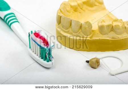 Image of a dental impression and a crown implant ready for fitting. An impression is taken of the patient's mouth, so a crown can be manufactured to fit the gap.  Shown here with a toothbrush, tooth paste and dental floss, to promote good dental hygiene.