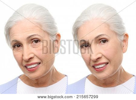 Senior woman before and after biorevitalization procedure on white background poster