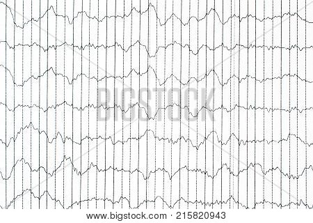 EEG electrophysiological monitoring method. EEG wave in human brain Brain wave patterns on electroencephalogram EEG of the child detect problems in the electrical activity of the brain