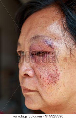 Elderly Injury To The Eyelid