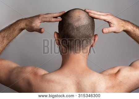 The Concept Of Male Alopecia And Hair Loss. Rear View, A Man Holding His Hands Over His Head With A