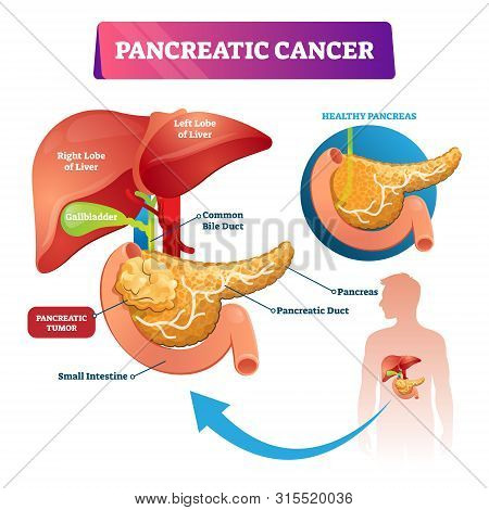 Pancreatic Cancer Vector Illustration. Labeled Sick Stomach Oncology Disease Scheme. Diagram With In