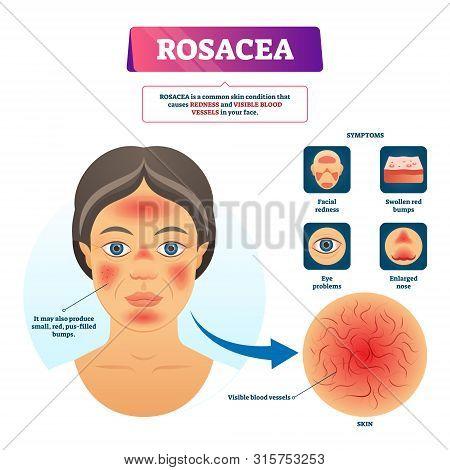 Rosacea Vector Illustration. Labeled Red Skin Problem Explanation Scheme. Educational Facial Dermato