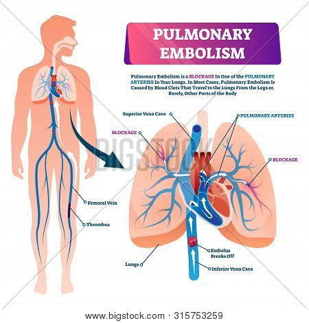 Pulmonary Embolism Vector Illustration. Labeled Lung Blood Blockage Disease Scheme. Anatomical Isola