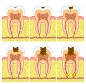 Some illustrations of an internal structure of tooth: caries and decay. poster