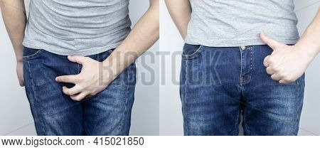Before And After Pain In The Bladder. Conceptual Shot. On The Left, The Man Grabbed His Bladder In P