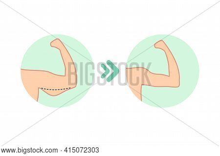 Female Biceps Before And After Sport. Vector Illustration Of Woman Body Problem. Fat And Slim Figure