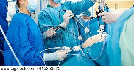 Surgeons Wearing Latex Gloves And Blue Uniforms Perform Laparoscopic Minimally Invasive Surgery Usin