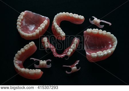 Dentures On A Black Background. Close-up Of Dentures. Dentistry Is Conceptual Photography. Prostheti