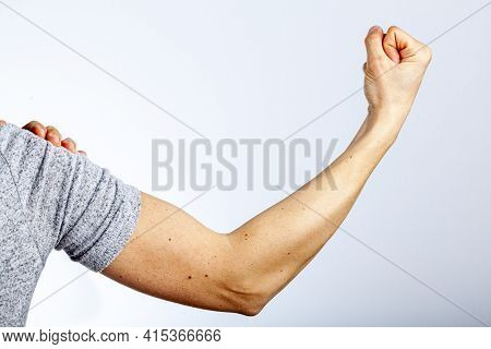 A Woman Is Showing Her Fist And Muscles Of Her Forearm And Arm In Contraction As A Gesture And Demon