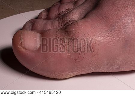 Hallux Rigidus, The Stiffening And Inflammation Of The Big Toe Due To Osteoarthritis