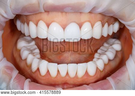 Dental Of Teeth After Treatment. Photo Of Teeth Close Up. Teeth Whitening Image. Treatment Plan For