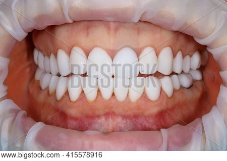 Dental Of Teeth Close Up. Teeth Whitening Image. Bleach Veneers. Dental Photography.
