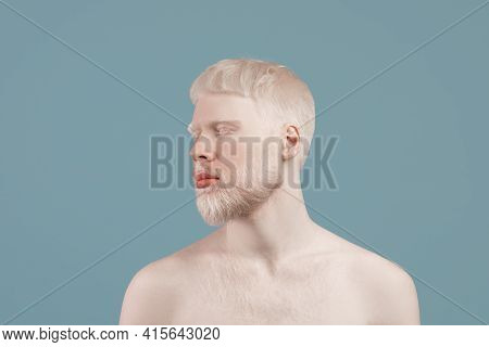 Uncommon Appearance Concept. Albino Guy With Naked Shoulders Posing Over Turquoise Studio Background