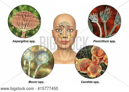 Fungi As A Cause Of Sinusitis. 3d Illustration Showing Inflammation Of Maxillary Sinuses And Fungi A