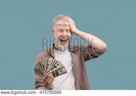 Big Win. Shocked Albino Guy Holding A Lot Of Money In Hand, Posing On Studio Background