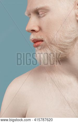 Young Albino Man With Naked Shoulders Posing Over Turquoise Studio Background, Closeup. Men Beauty A