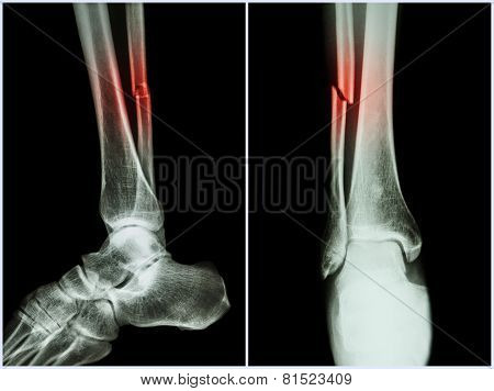 Fracture Shaft Of Fibula Bone ( Leg Bone ) .  X-ray Of Leg ( 2 Position : Side And Front View )