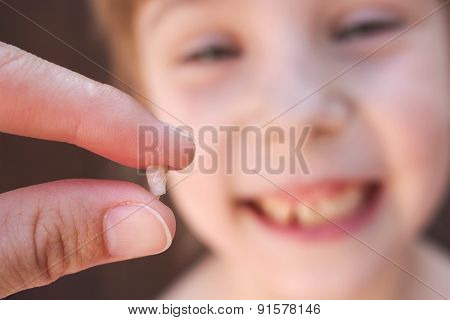 At 6 years old child has lost the baby tooth. The girl is holding the tooth in his hand.