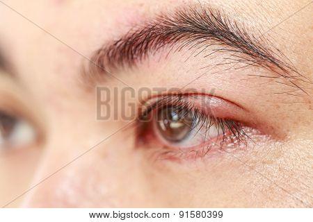 Left Upper Eye Lid Abscess