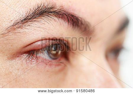 Right Upper Eye Lid Abscess