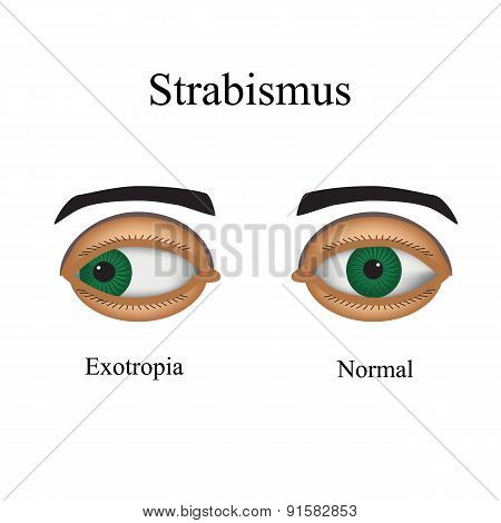 Diseases of the eye - strabismus. A variation of strabismus - Exotropia