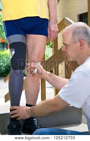 Physiotherapist Adjusting Prosthetic Leg