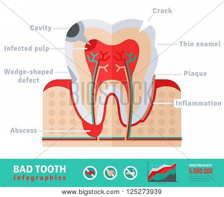 Bad tooth anatomy flat icon concept. Teeth infographics.Vector illustration. Infected pulp and nerves, thin enamel, plaque. Abscess.