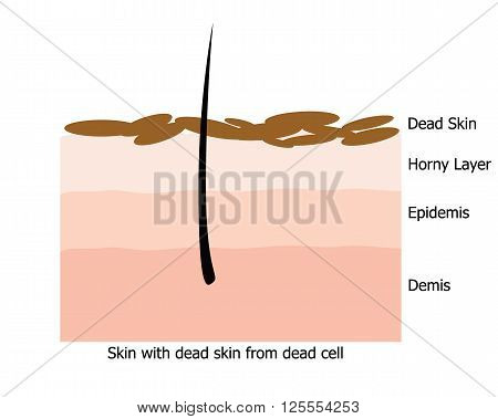 Infographic about dead skin on human skin by UV ray