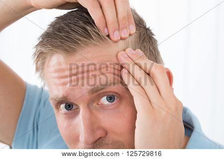 Man Examining His Hair