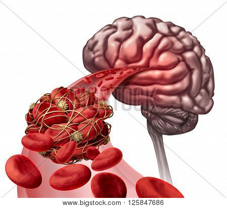 Brain blood clot medical concept as 3D illustration blood cells blocked by an artery blockage thrombus causing a blockage of blood flow to the neurology anatomy.