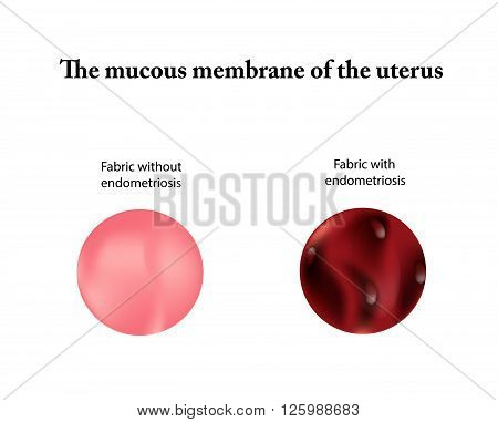 Endometriosis.  The endometrium. Vector illustration on isolated background.