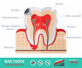 Bad tooth anatomy flat icon concept. Teeth infographics.Vector illustration. Infected pulp and nerves, thin enamel, plaque. Abscess. poster