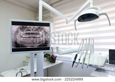 Dental x-ray footage in modern dental clinic