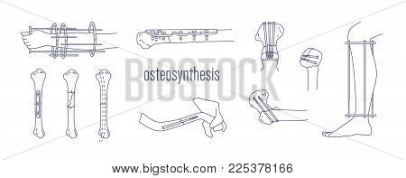 Collection of fractured bones and limbs fixed with metal implantable devices drawn with contour lines on white background. Bundle of osteosynthesis constructions. Monochrome vector illustration
