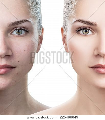 Comparison Portrait Of Young Woman Before And After Retouch And Makeup.