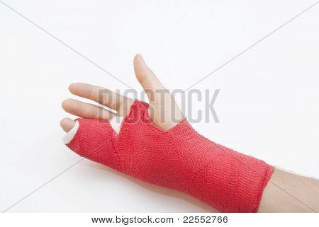 Bandaged Arm With Broken Finger