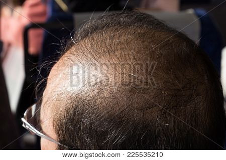 Close-up Of Balding And Thinning Hair Of Man At Crown Area Revealing Scalp